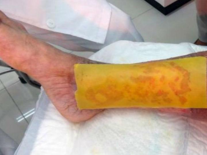Crean parche de miel que evita amputaciones en pacientes con diabetes