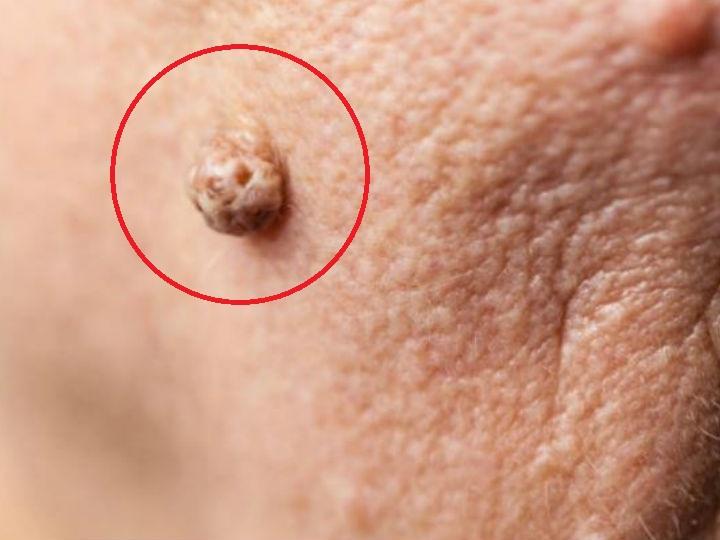 Verrugas planas cara tratamiento para la quitar de las