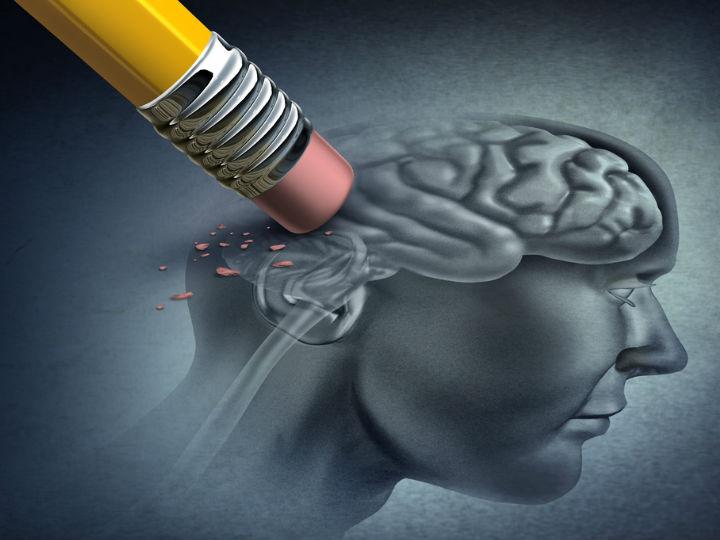 Alzheimer y demencia ¿cuáles son sus diferencias?