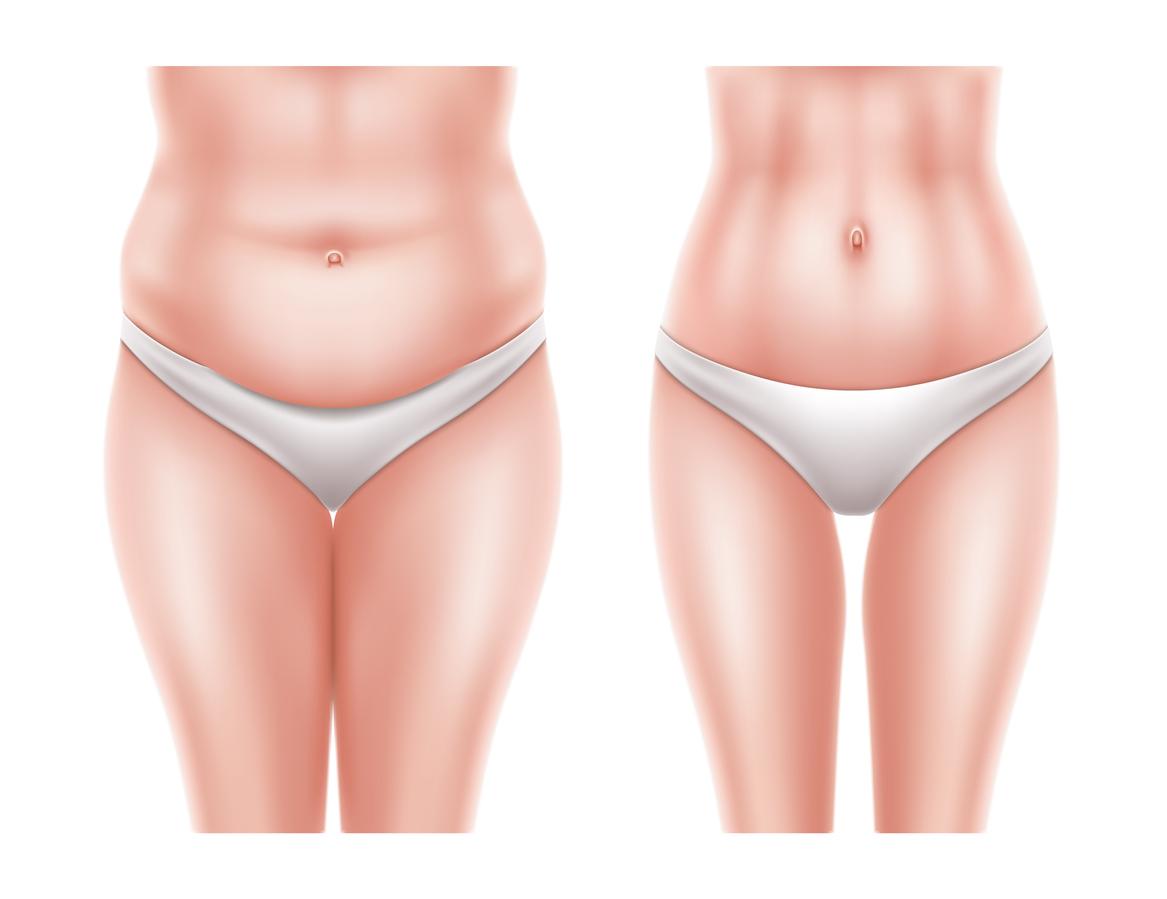 Quemador de grasa abdominal inyectable
