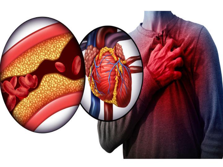 q hacer con el colesterol alto