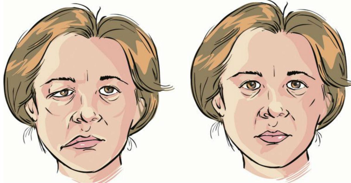 Migrañas con espasmos faciales