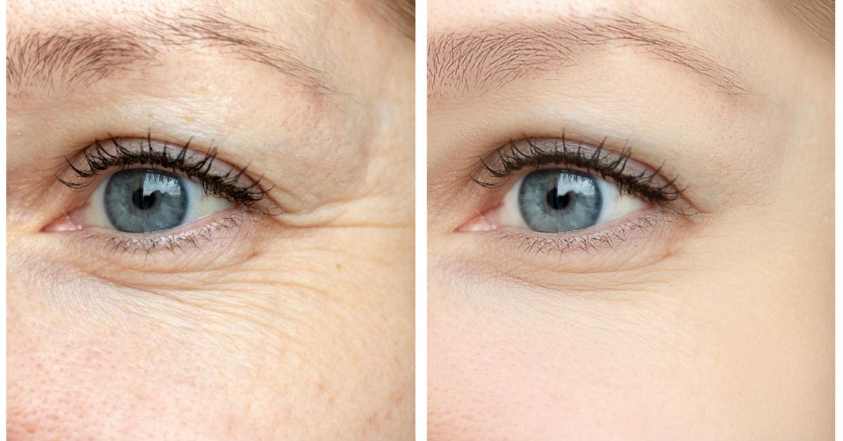 el vinagre de manzana es bueno para las infecciones oculares