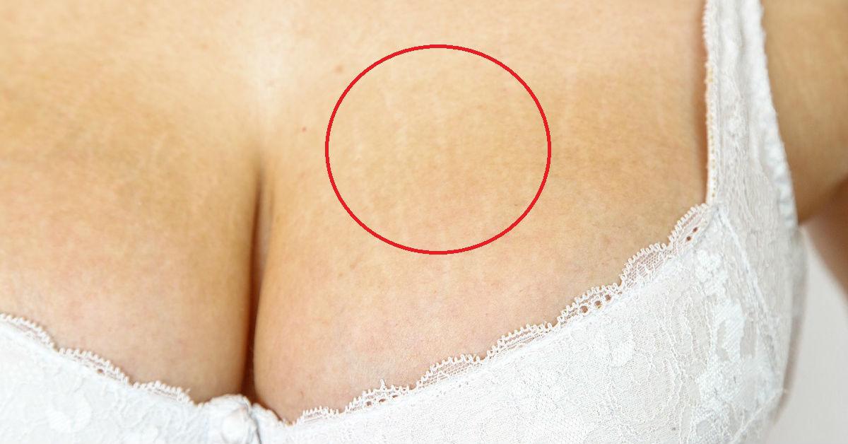 que sirve para las estrias en los senos