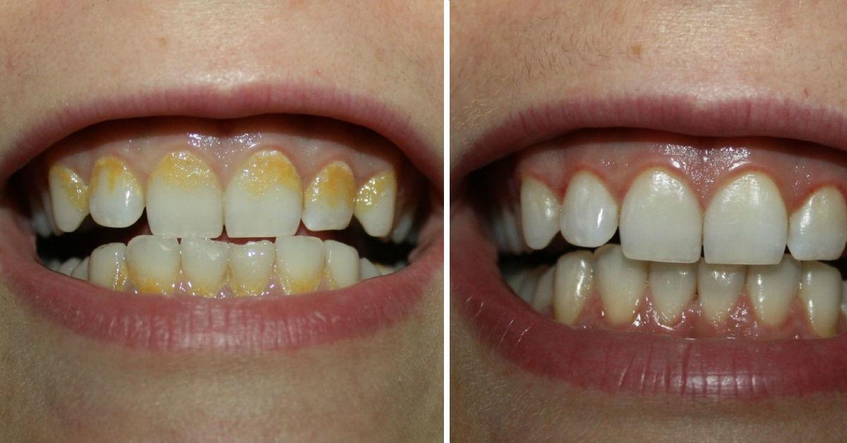 Como quitar el sarro delos dientes de forma casera