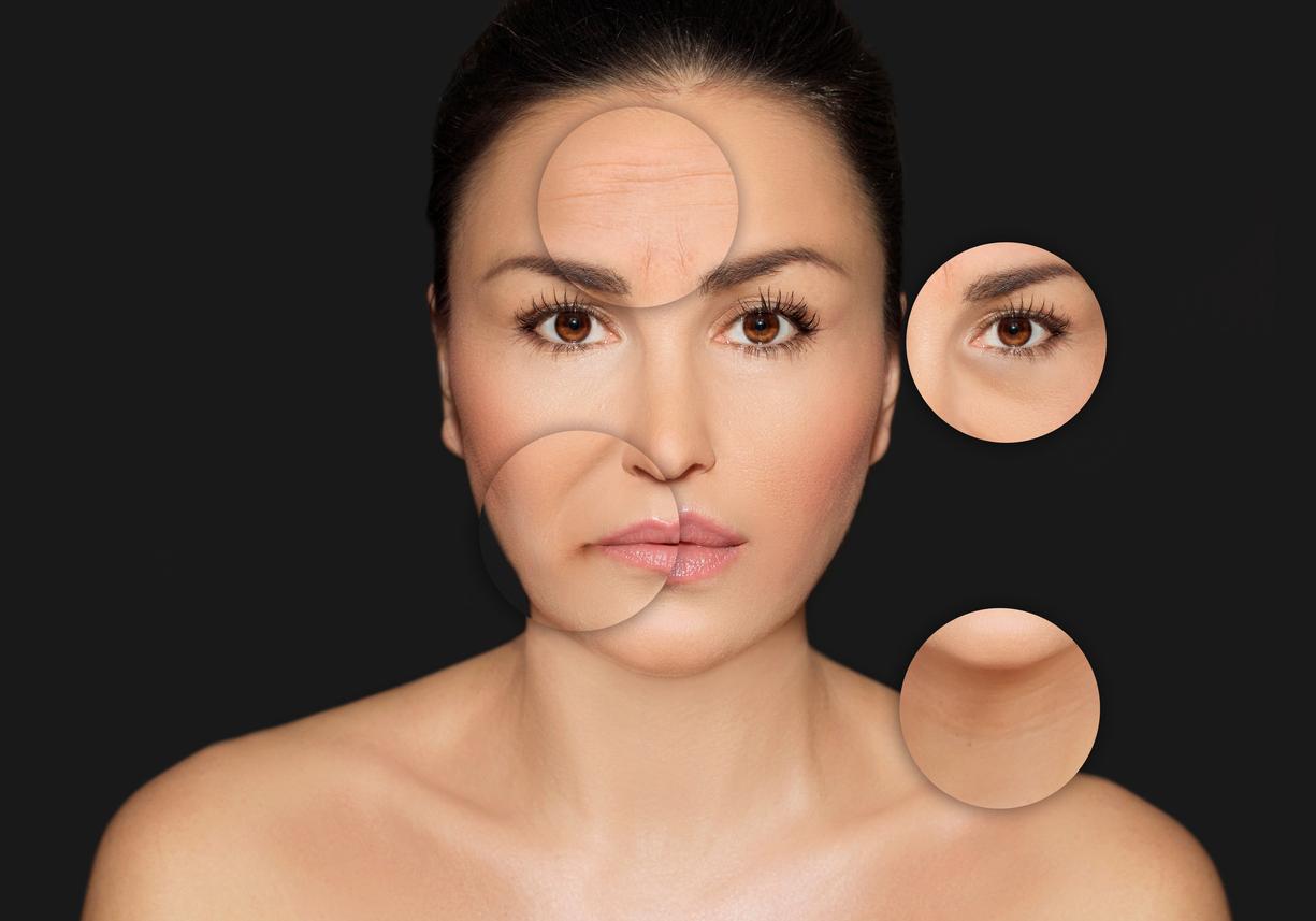 La aparición de los primeros signos del envejecimiento como: tener los poros de la cara muy abiertos, la aparición de las líneas de expresión, ojeras, manchas y flacidez en la piel