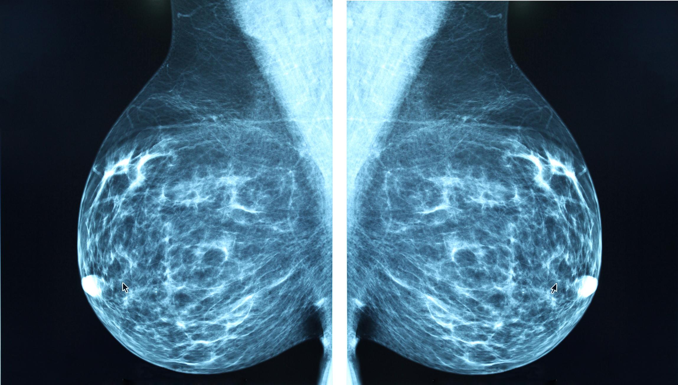 Cuáles son los síntomas menos conocidos del cáncer de mama