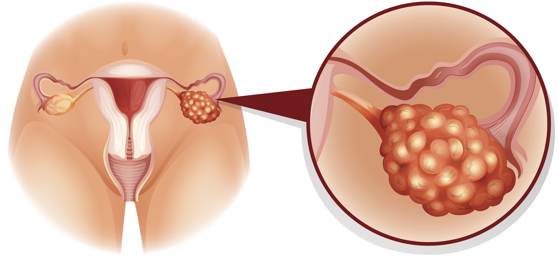 Qué consecuencias trae la extirpación de ovarios
