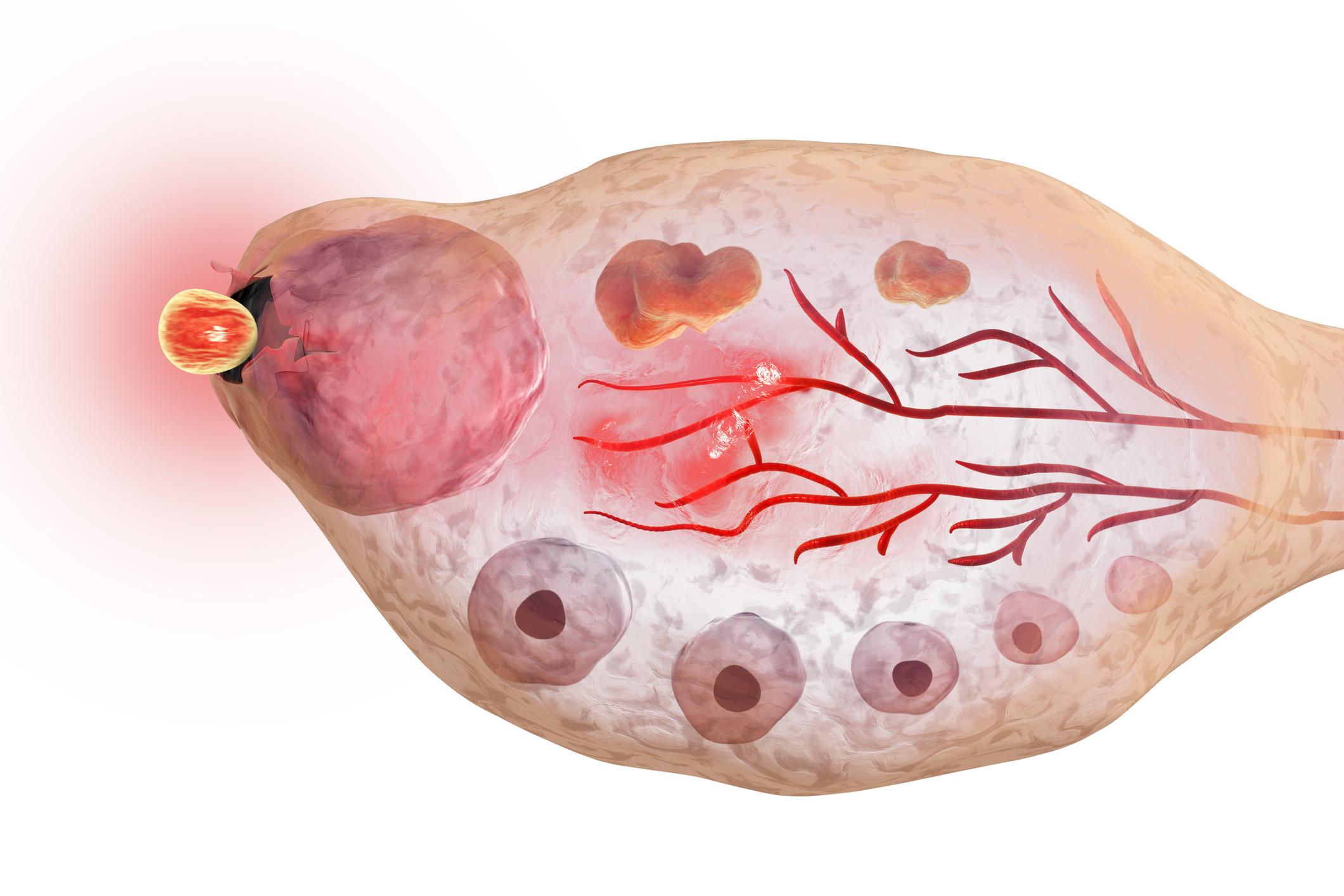 Cómo quedar embarazada con síndrome de ovario poliquístico