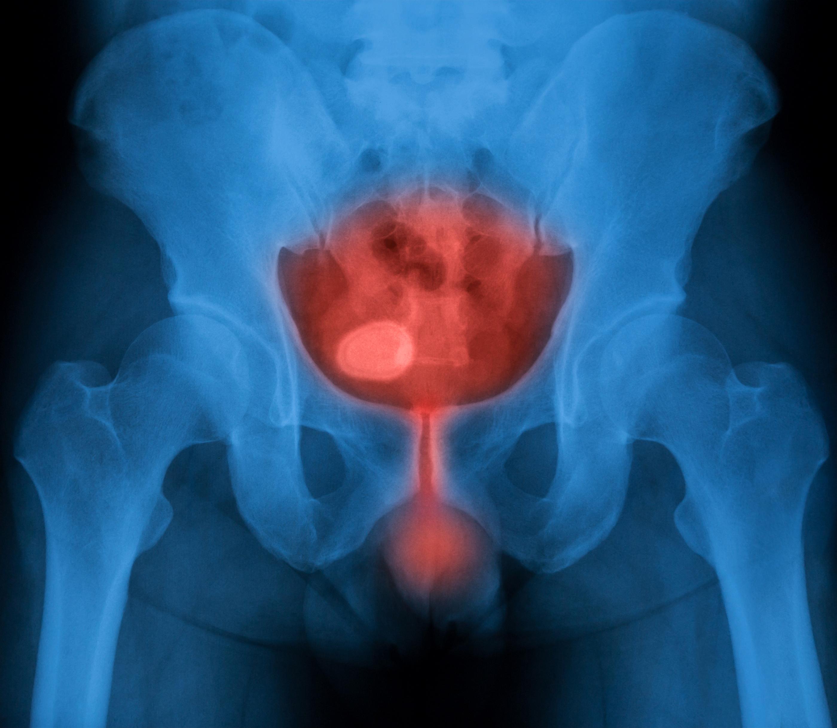 qué son las infecciones urinarias_salud180
