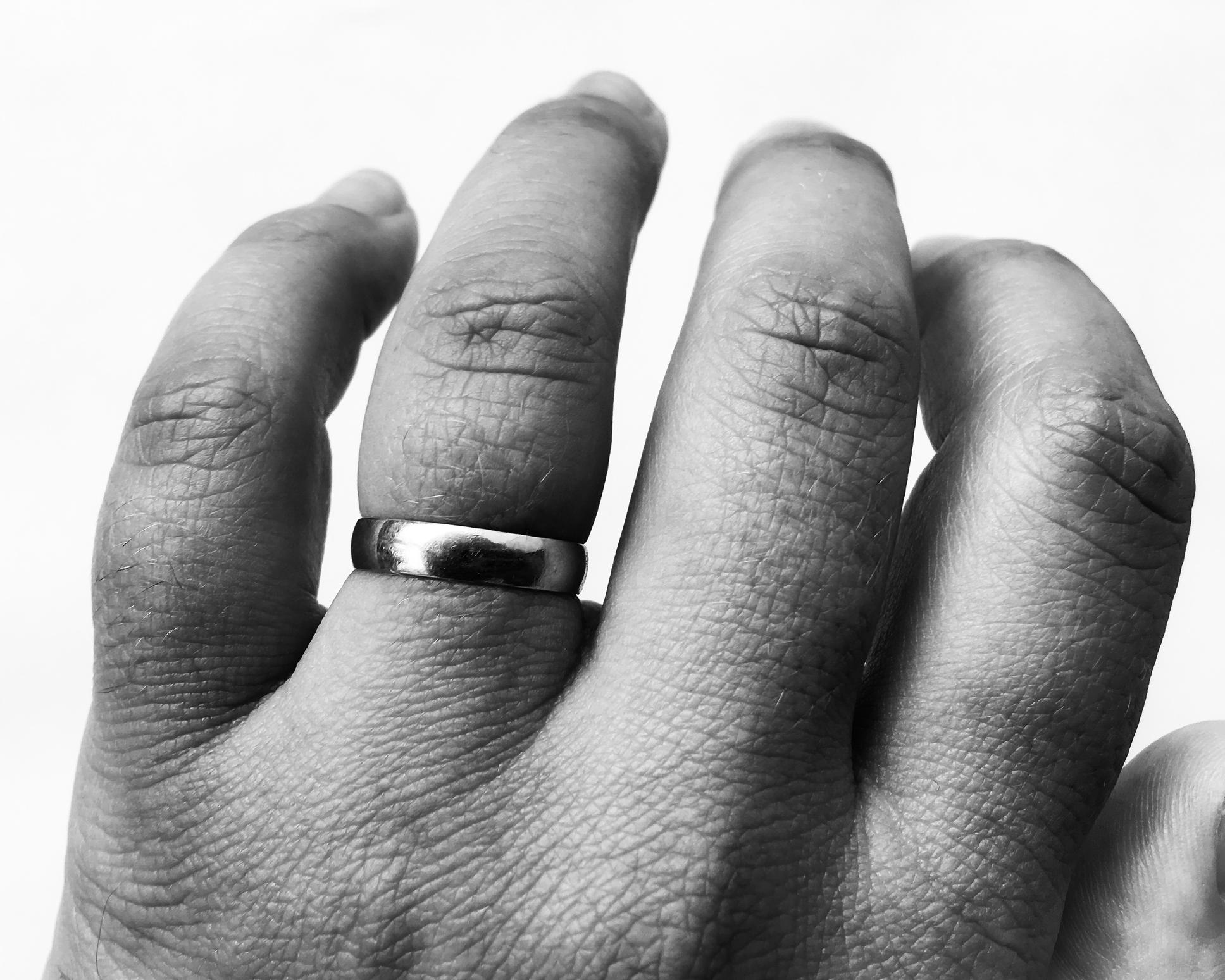 por qué se hinchan los dedos de las manos