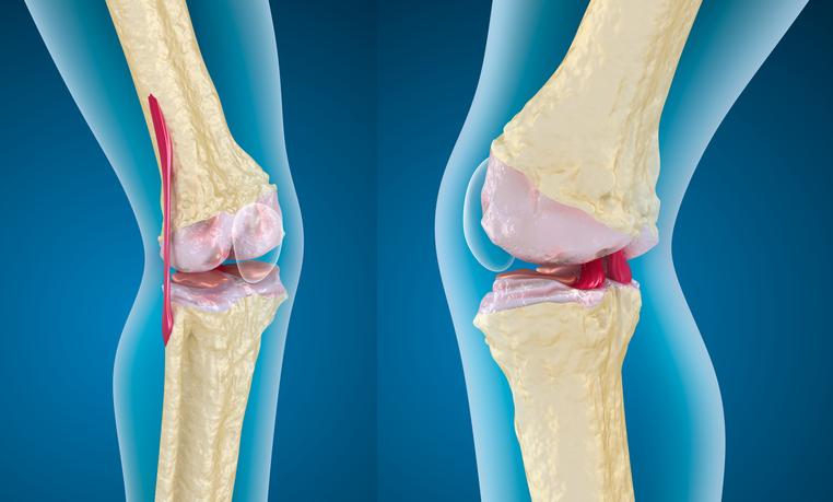 tratamiento para el liquido sinovial de la rodilla