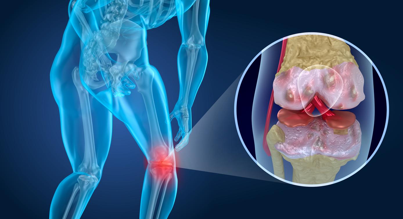 Las células mesenquimales, que son las que producen el tejido conectivo como son las células del hueso, grasa y cartílago
