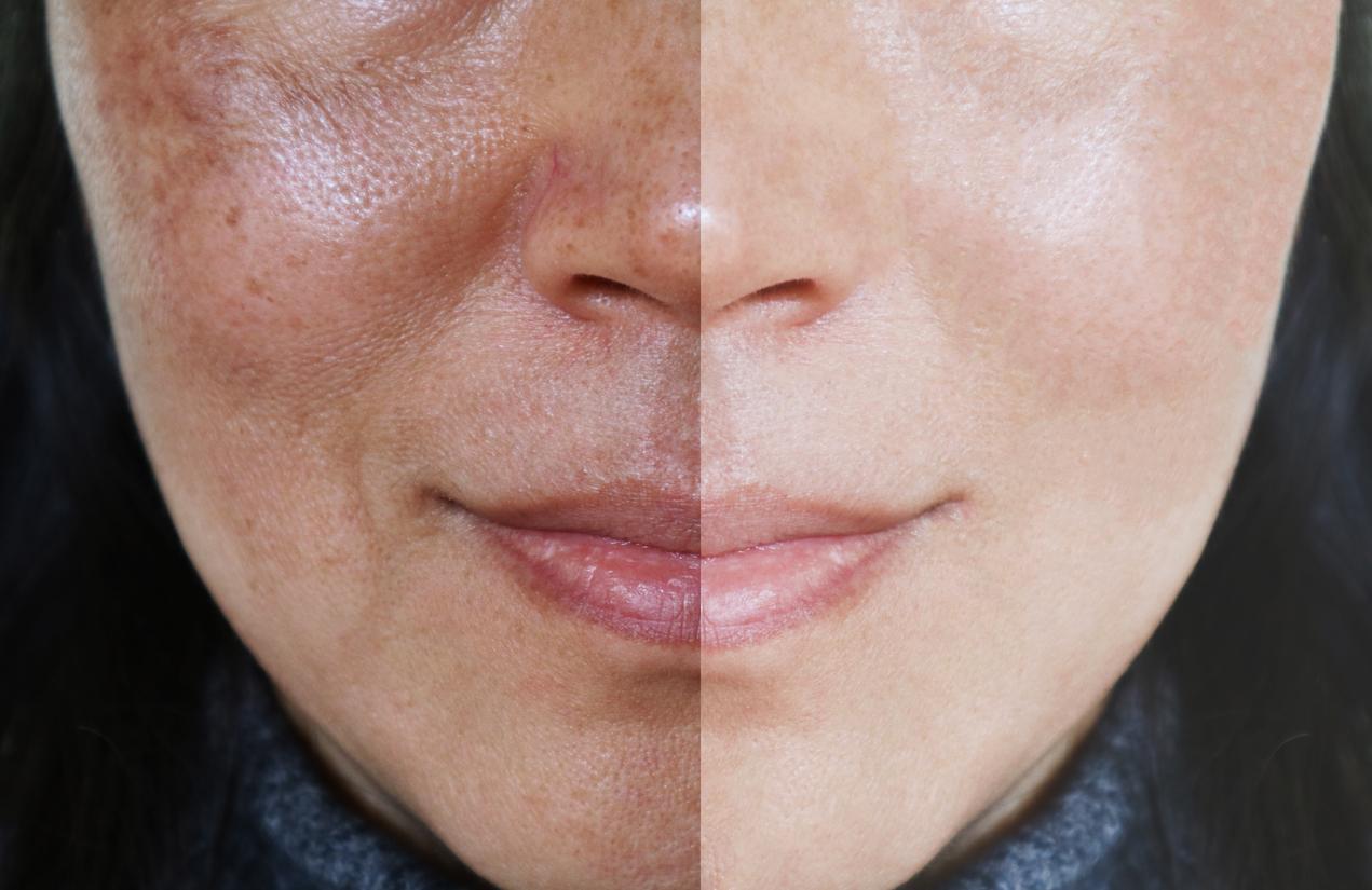 mascarilla-de-miel-y-leche-para-aclarar-la-piel-en-solo-7-dias-salud180