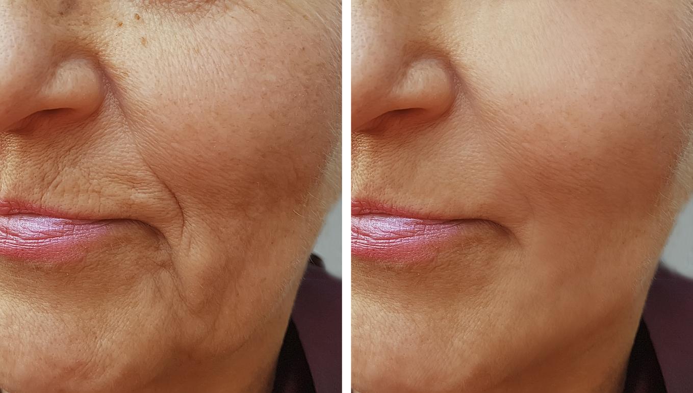 3 mascarillas con aloe vera para rejuvenecer la piel si ya te salieron arrugas o manchas