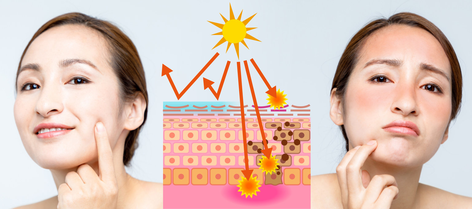 Exposición a los rayos ultravioleta durante varias horas