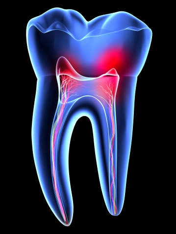 molar tooth pain - 398×530