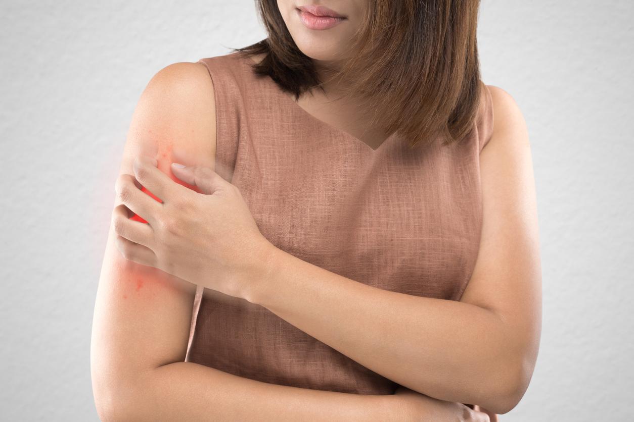 las personas que padecen de piel seca pueden presentar este tipo de granos en los brazos por dermatitis atópica