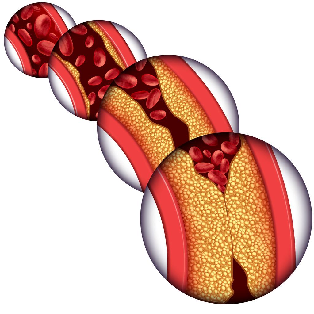 Un ataque al corazón ocurre cuando el ducto por el que pasa la sangre al corazón se bloquea debido al acumulamiento de grasa, colesterol o la formación de placa en las arterias.