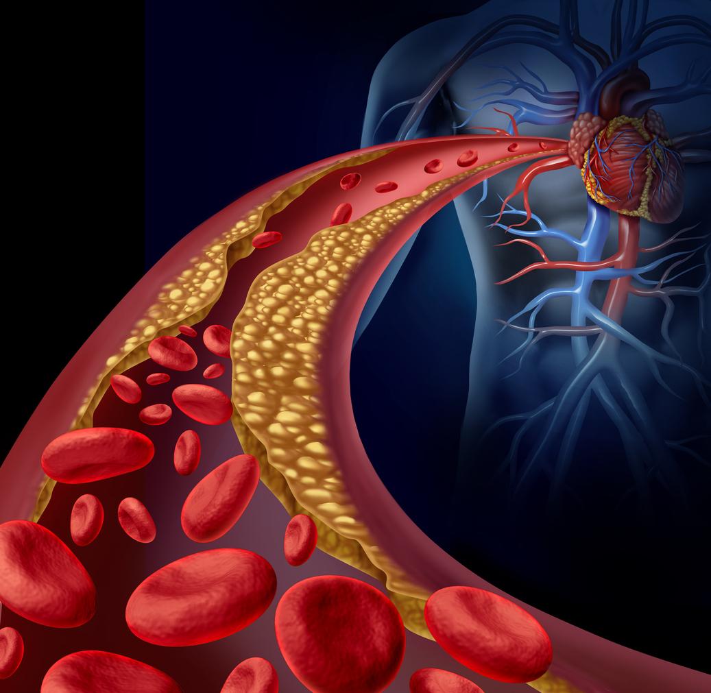 La dieta de dos manzanas diarias durante mes y medio baja del colesterol