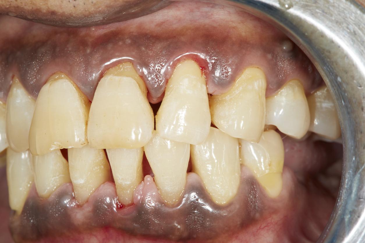 Encías retraídas, cambio de color en las encías síntomas de gingivitis