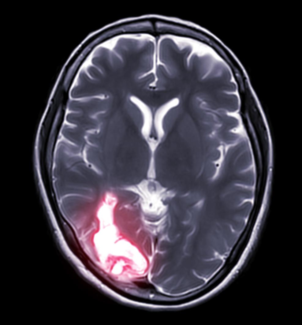 Complicaciones de la neurosífilis