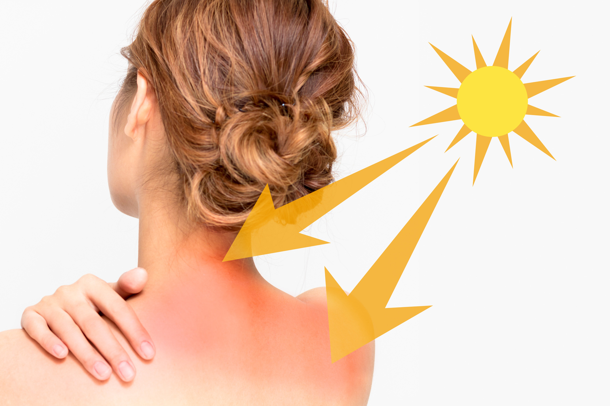 Quemaduras de sol afectan tu piel