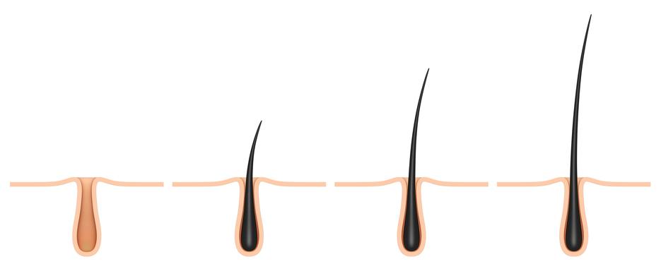 Razones por las que no te crece el pelo