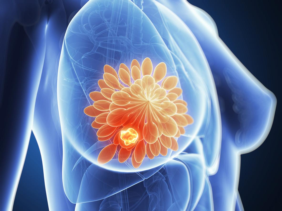 son tumores benignos que se presentan en las mujeres menores a 30 años