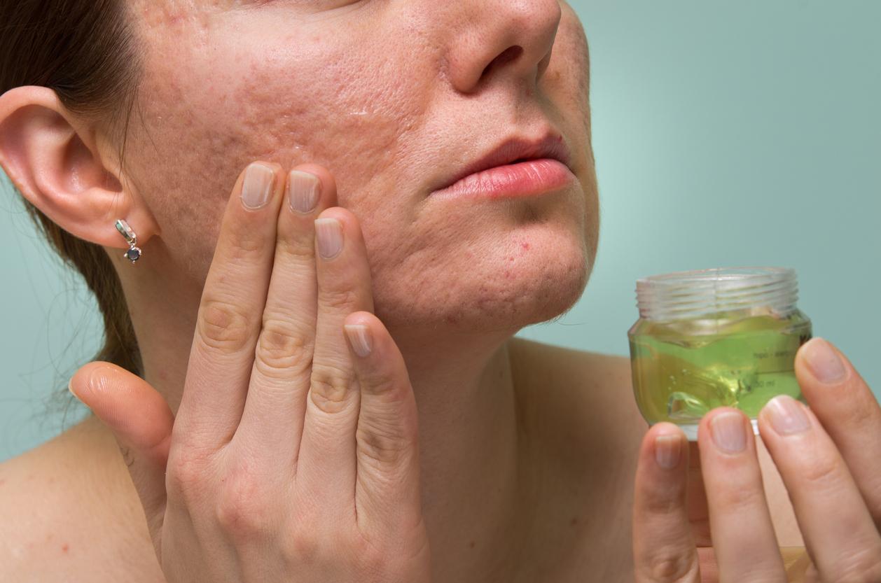 sabila-usos-acne-salud180