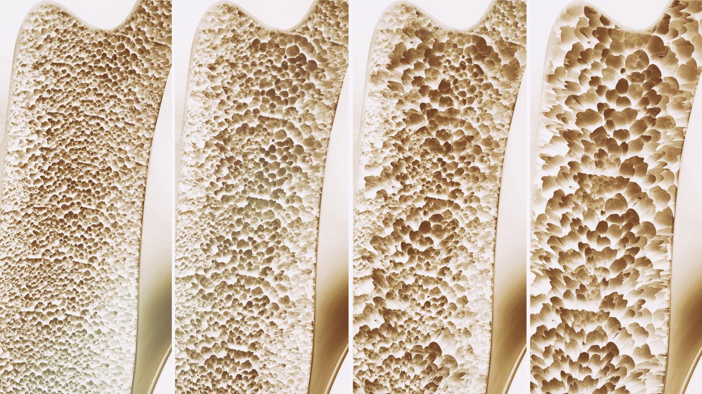 Al tener una deficiencia, puede conducir osteoporosis.