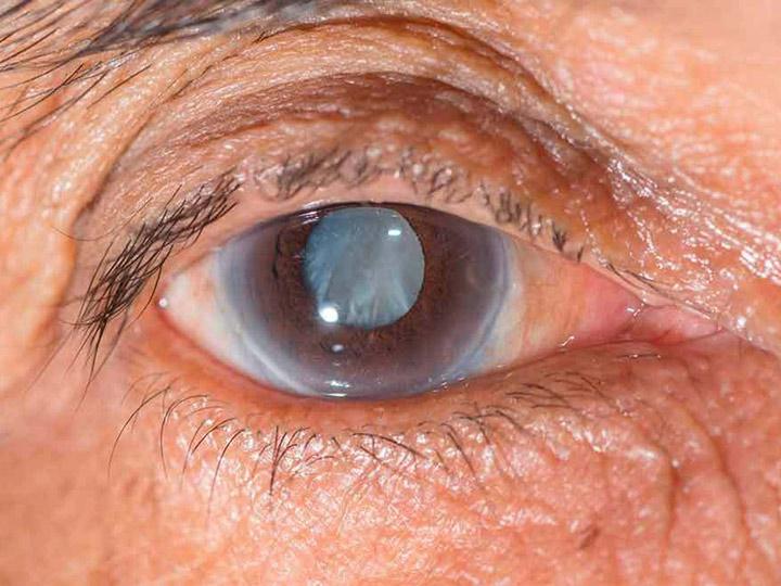 Retinopatía diabética:  Es causada por un daño en los vasos sanguíneos de retina