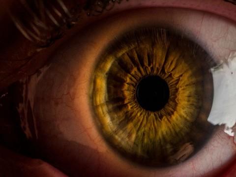 existen gotas para aclarar los ojos amarillos