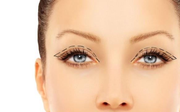 Cirugía para hacer los ojos más grandes