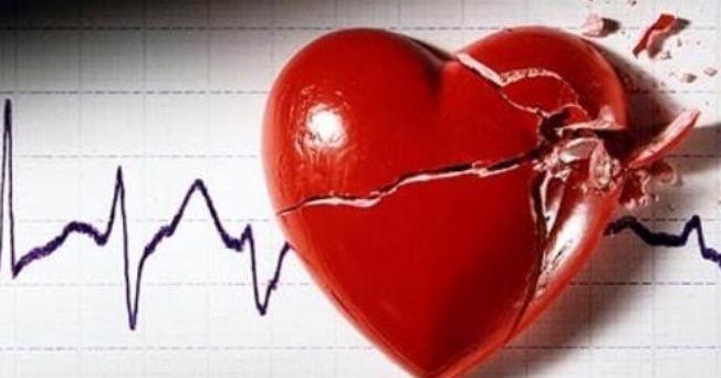 c931f54a8a71a Enfermedad cardiovascular 1ra. causa de muerte