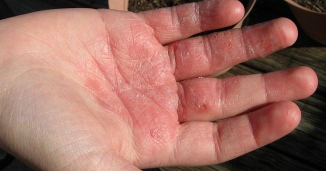 Eccema y la dermatitis at pica afectan a todos por igual for Dermatitis atopica piscina cloro