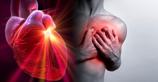 Lunes: el día de más infartos