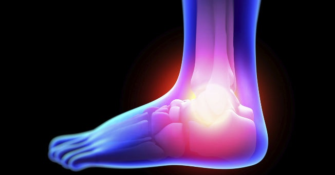 7 señales del cáncer de hueso