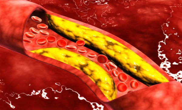 how are triglycerides phospholipids and steroids different