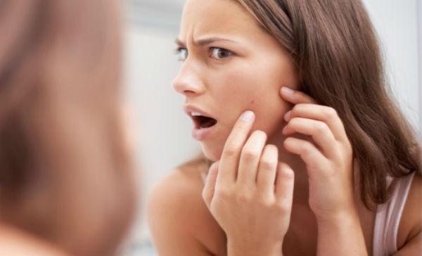 8 alimentos que te generan acné
