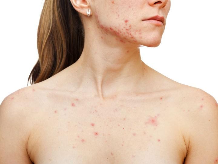 que hacer para eliminar acne