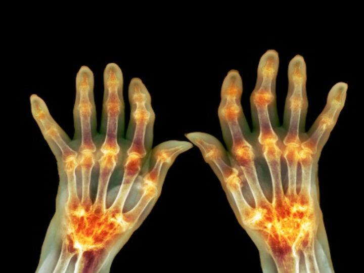 por qué duelen las articulaciones del cuerpo | Salud180