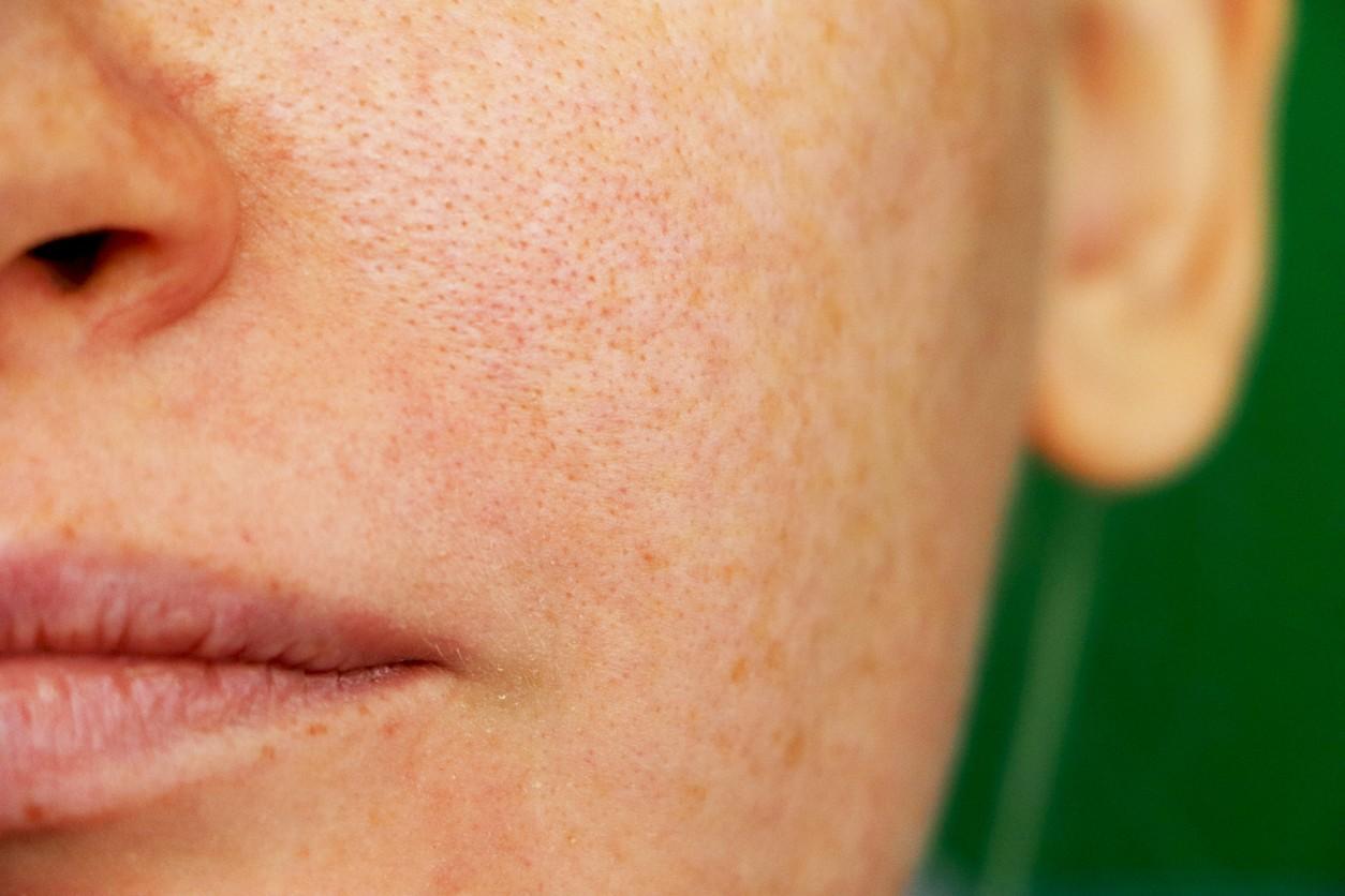 Cómo cerrar los poros abiertos de la cara en tan sólo 2 minutos