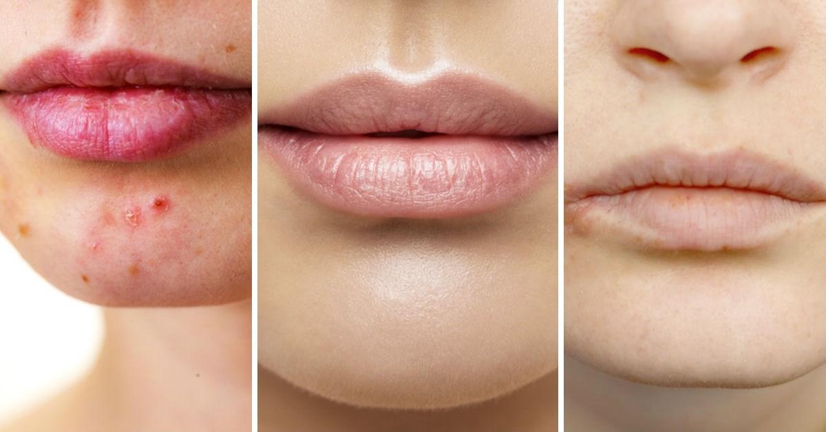 Esto Es Lo Que El Color Natural De Tus Labios Refleja Sobre Tu Salud
