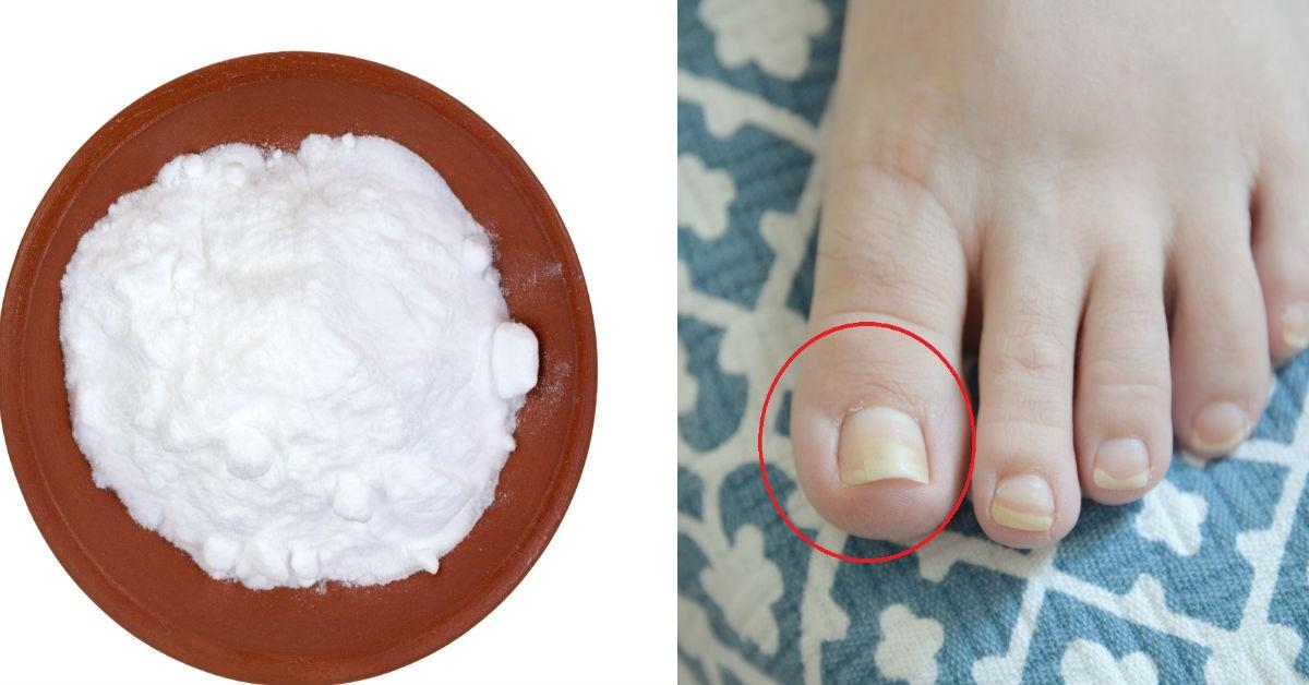 Elimina Los Hongos En Las Uñas Con Un Ingrediente Que Seguro Tienes En Casa