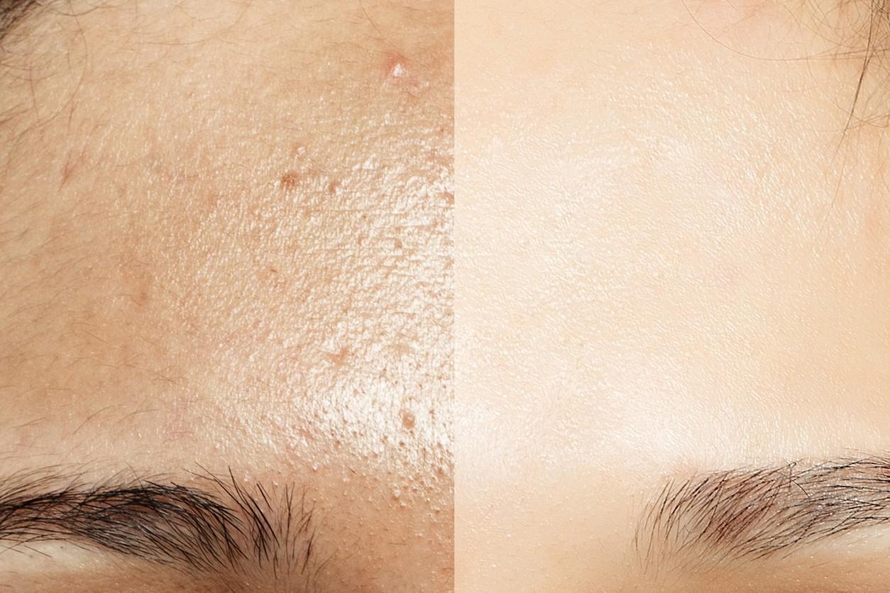 Trucos De Belleza Para Eliminar El Brillo De La Cara Todo El Día Si Tienes Piel Grasa
