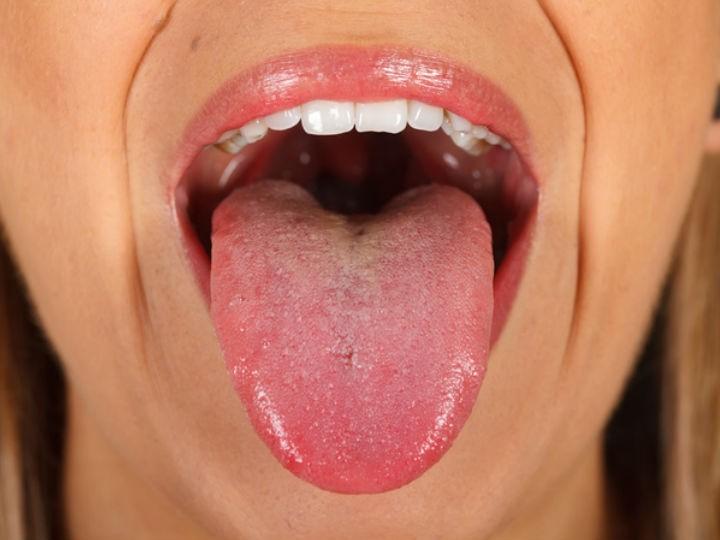 cancer en la boca por papiloma