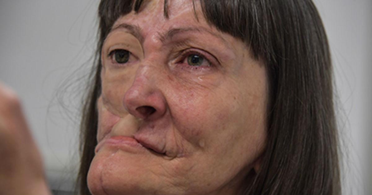 Cancer facial que es, Cancerul - de ce se îmbolnăvesc oamenii de cancer ?