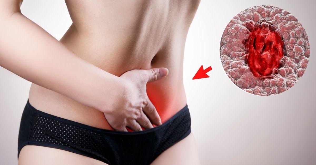 Úlceras en el cuello uterino: ¿cómo se tratan y cuándo sí debes preocuparte?