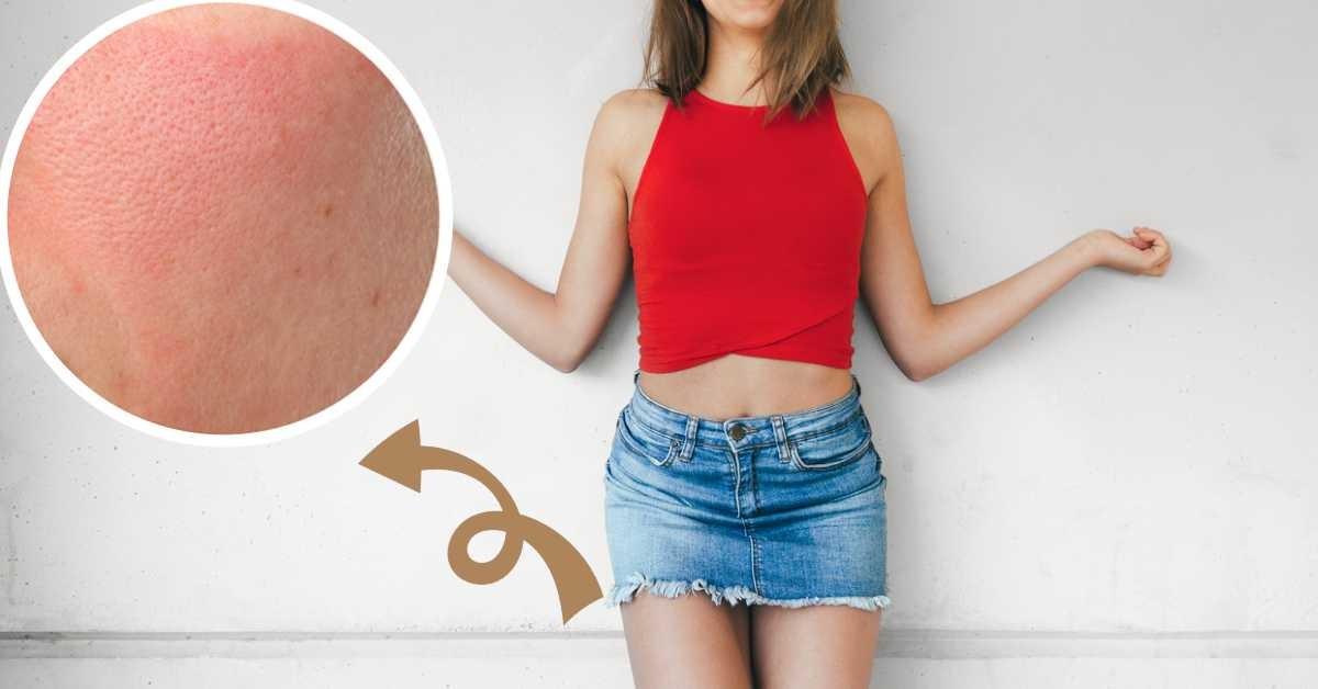 10 remedios para aliviar (y prevenir) las rozaduras en los muslos por usar  falda o vestido